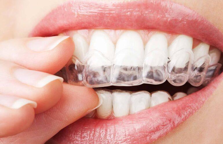 Invisalign Dentology