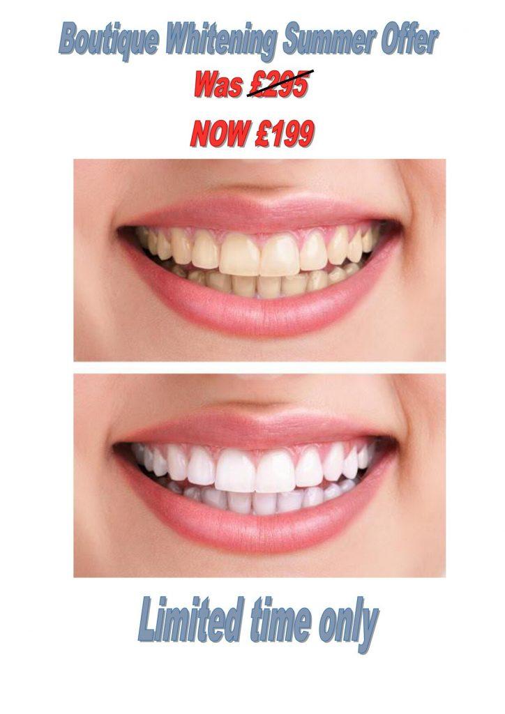 dentist-offer-june-2021